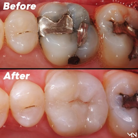 Silver filling is replaced with a natural biomimetic restoration.